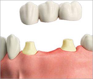 impianti-singoli-denti-1-c-tech-implant